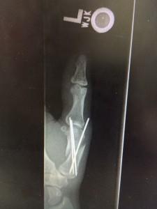 Thumb fixed